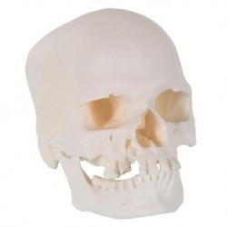 3B Scientific, Cranio microcefalo A29/1