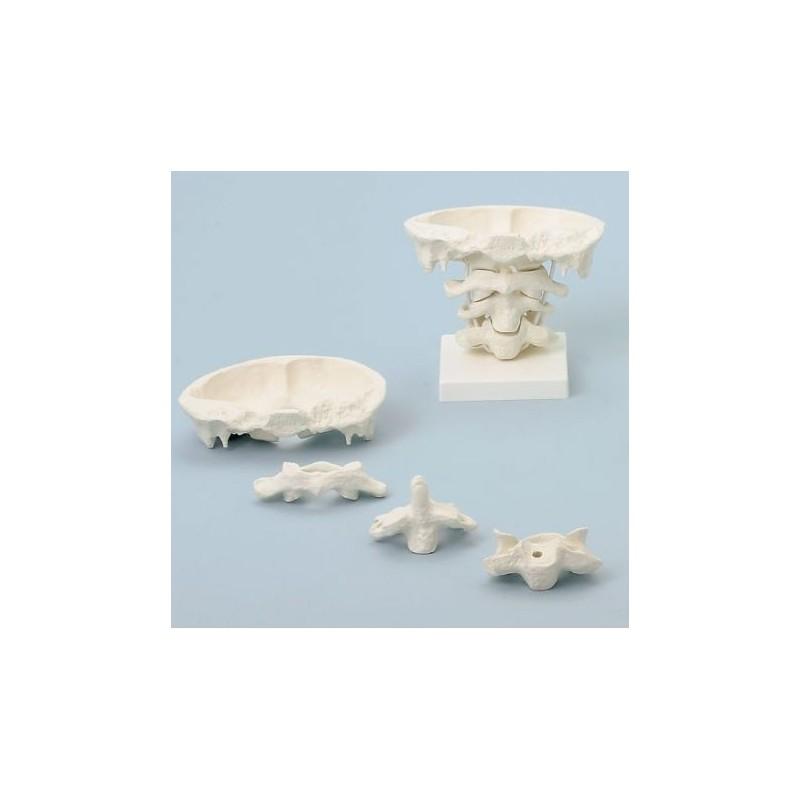 Erler Zimmer, modello di articolazione del cranio, ingrandita di due volte, su base, scomponibile in 4 parti 4083