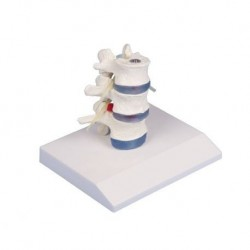 3B Scientific, tavola anatomica, Poster Osteoporosi (cod. VR4121UU)