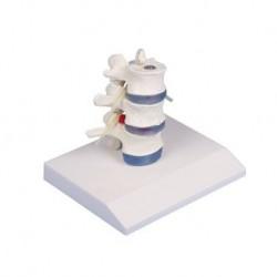 Erler Zimmer modello anatomico didattico di 3 vertebre lombari con prolasso, su stand 4047