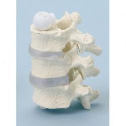 Erler Zimmer, modello anatomico di vertebre toraciche, a montaggio elastico